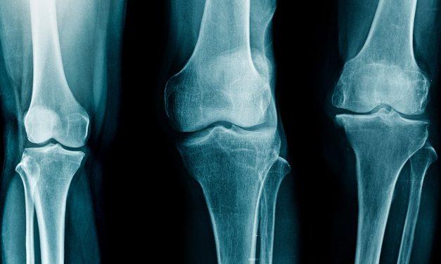 Pansement anti-arthrose : ce qu'il faut savoir